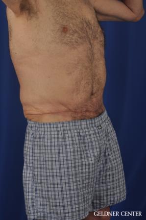 Abdominoplasty For Men: Patient 3 - After Image 2