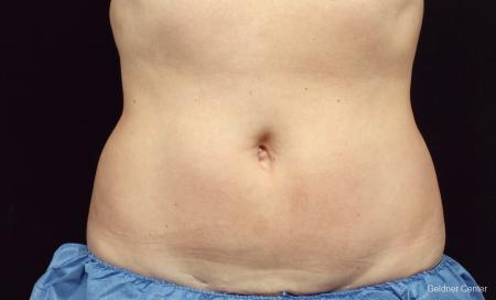 Chicago Coolsculpting 2320 - After Image