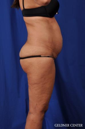 Lipoabdominoplasty: Patient 5 - Before Image 3