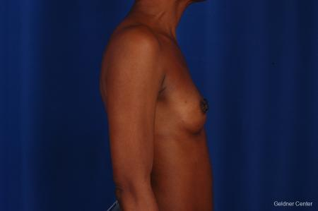 Chicago Breast Augmentation 2293 - Before Image 2