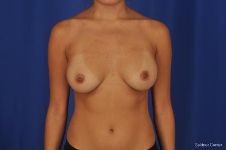 Breast Augmentation Streeterville, Chicago 2298 - Before Image 1