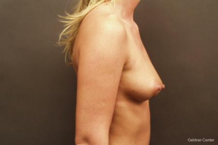 Breast Augmentation Streeterville, Chicago 2425 - Before Image 2