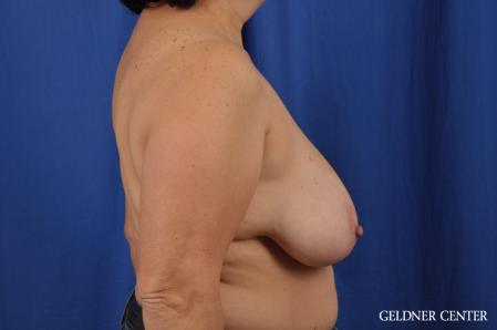 Breast Reduction: Patient 31 - Before Image 3
