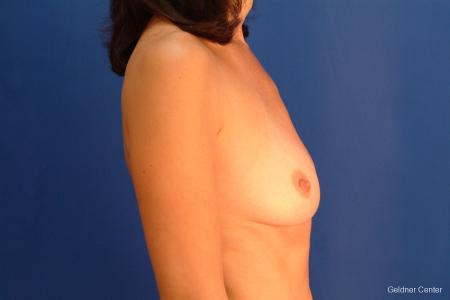 Breast Augmentation Streeterville, Chicago 2437 - Before Image 2
