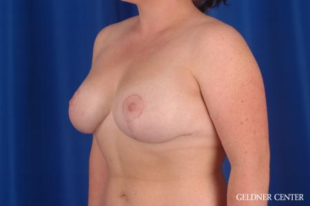 Breast Reduction: Patient 34 - After Image 4