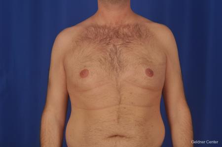 Gynecomastia: Patient 1 - Before Image