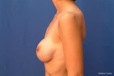 Chicago Breast Augmentation 2414 - Before Image 3