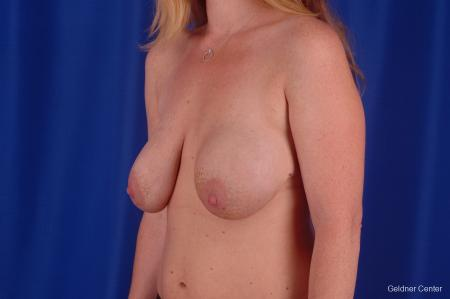 Chicago Breast Lift 2291 - Before and After Image 3