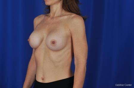 Chicago Breast Augmentation Natrelle Smooth Gel Implants 2067 -  After Image 4