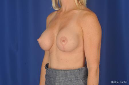Breast Lift: Patient 19 - After Image 4