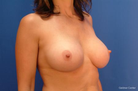 Breast Augmentation Streeterville, Chicago 2437 -  After Image 3