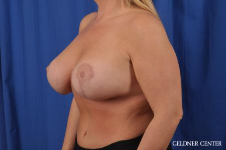 Breast Lift: Patient 41 - After Image 4
