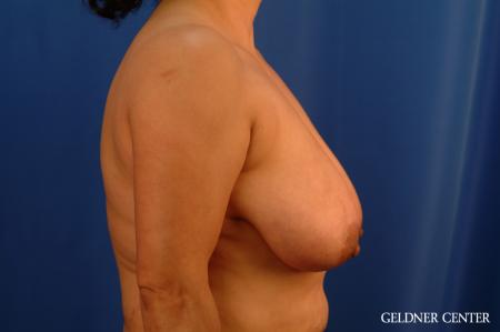 Breast Reduction Hinsdale, Chicago 2630 - Before Image 2