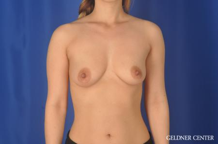 Breast Augmentation Lake Shore Dr, Chicago 11849 - Before Image 1