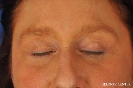 Brow Lift: Patient 4 - After Image 5