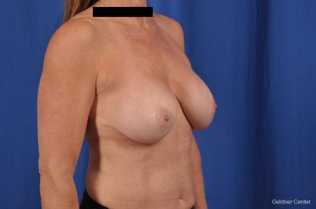 Breast Lift: Patient 43 - Before Image 3