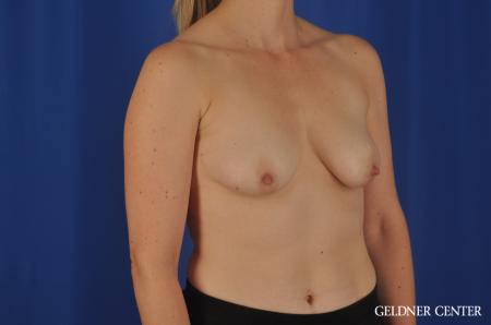 Chicago Breast Lift 4289 - Before Image 2
