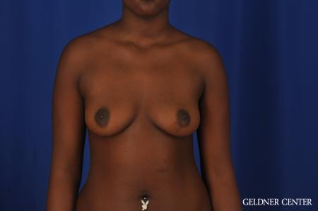 Breast Augmentation Hinsdale, Chicago 4001 - Before Image 1