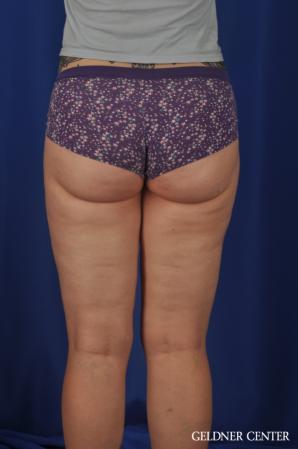 Liposuction: Patient 44 - After Image 4