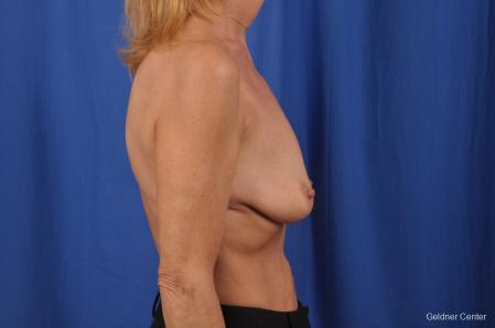 Breast Lift: Patient 44 - Before Image 2