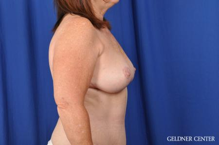 Breast Lift Hinsdale, Chicago 3232 -  After Image 2