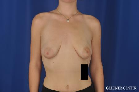 Breast Augmentation Streeterville, Chicago 5547 - Before Image 1