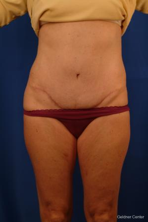 Liposuction: Patient 11 - After Image 1