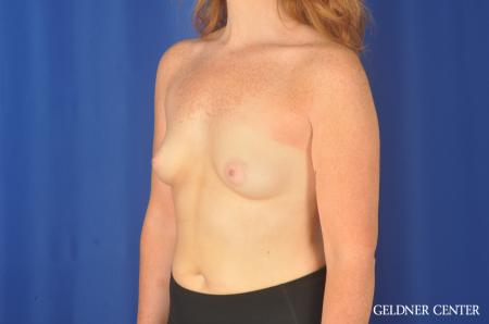 Breast Augmentation Streeterville, Chicago 11870 - Before and After Image 4
