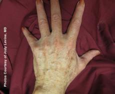 Laser: Patient 5 - Before Image