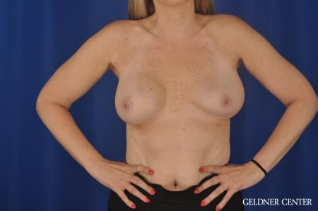 Chicago Complex Breast Augmentation 8750 - Before and After Image 5