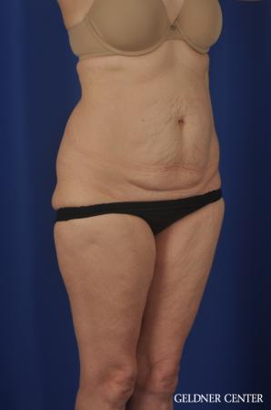 Chicago Abdominoplasty 11851 - Before Image 2