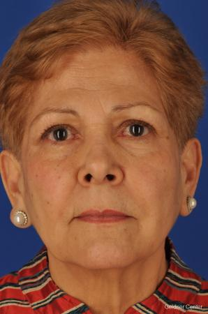 Chicago Brow Lift 2062 - Before Image