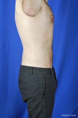 Liposuction For Men: Patient 3 - After Image 3