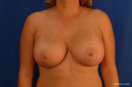 Chicago Breast Augmentation 2532 -  After Image 1