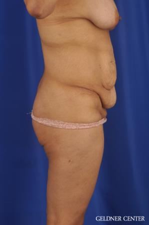 Tummy Tuck: Patient 33 - Before Image 3