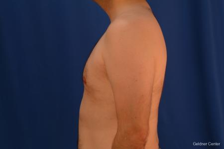 Gynecomastia: Patient 4 - After Image 4