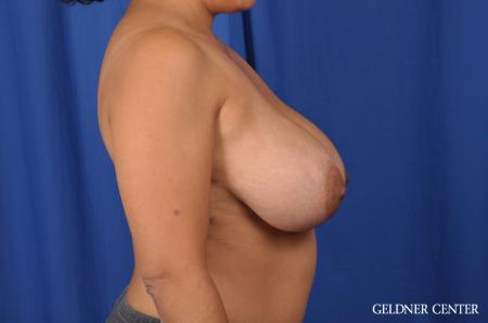 Breast Reduction: Patient 23 - Before Image 2