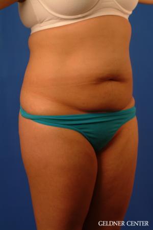 Liposuction: Patient 46 - Before Image 2