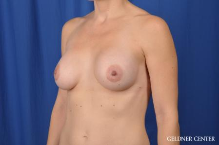Breast Augmentation: Patient 170 - After Image 4