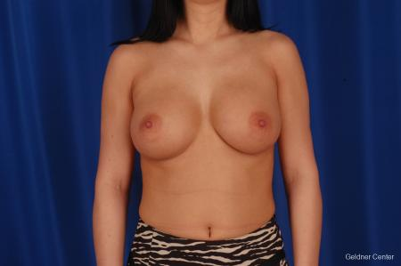Breast Augmentation Lake Shore Dr, Chicago 2402 -  After Image 1