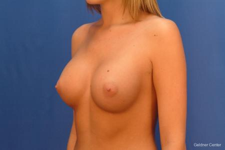 Chicago Breast Augmentation 2431 -  After Image 4
