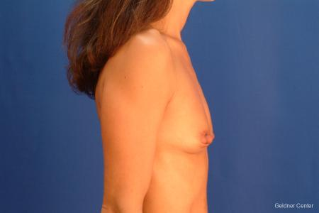 Chicago Breast Augmentation 2521 - Before Image 2
