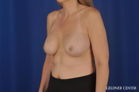 Breast Augmentation Streeterville, Chicago 8749 - Before Image 4