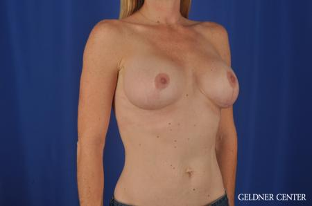 Chicago Complex Breast Augmentation 4005 -  After Image 2