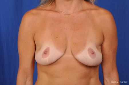 Complex Breast Augmentation Streeterville, Chicago 2392 - Before Image 1