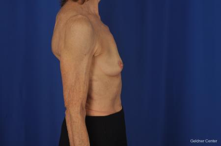 Breast Augmentation Hinsdale, Chicago 2055 - Before Image 2