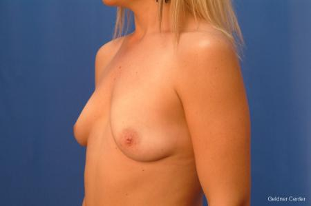 Breast Augmentation Lake Shore Dr, Chicago 2350 - Before and After Image 4