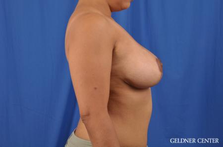 Breast Reduction: Patient 23 - After Image 2