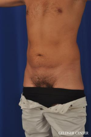 Liposuction For Men: Patient 12 - Before and After Image 4