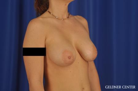 Breast Augmentation: Patient 171 - After Image 2